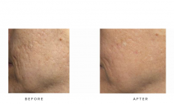 acne scarring treatment with fraxel laser - before and after - image 007