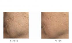 Fraxel+–+Acne+scars_7