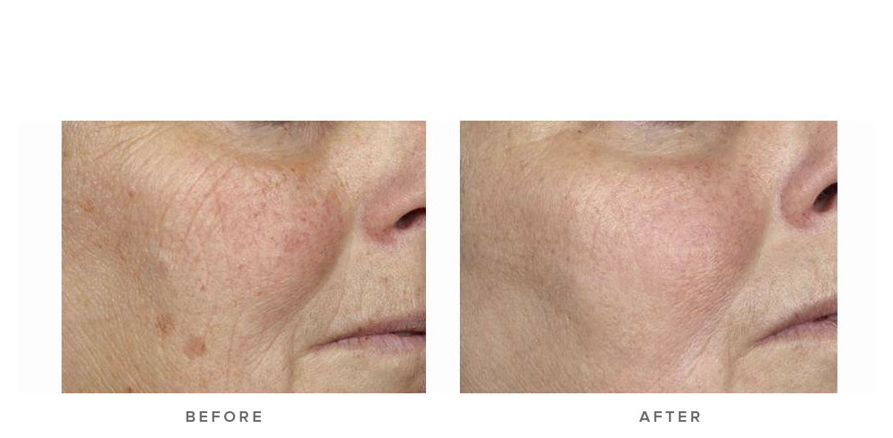 fraxel laser before and after - pigmentation texture and wrinkles 001