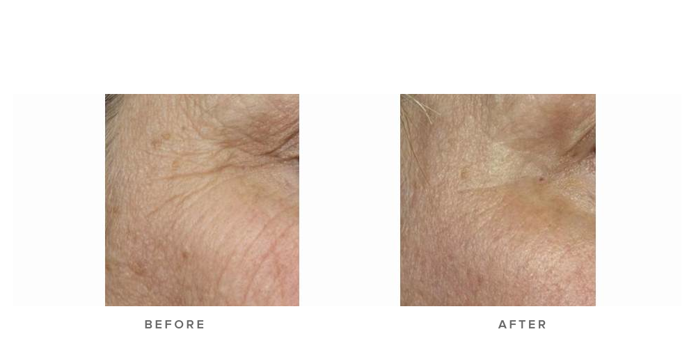 fraxel laser for pigmentation and texture wrinkles - before and after image 002