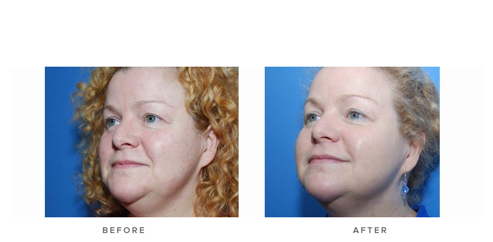 fraxel laser before and after 004 - pigmentation texture wrinkles - face