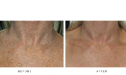 fraxel laser for sun damage and wrinkles - before and after - front