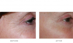 fraxel laser and wrinkles - before and after - side view