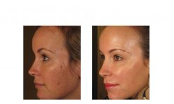 halo laser, forever young bbl, skintyte - before and after 010 - face - side view
