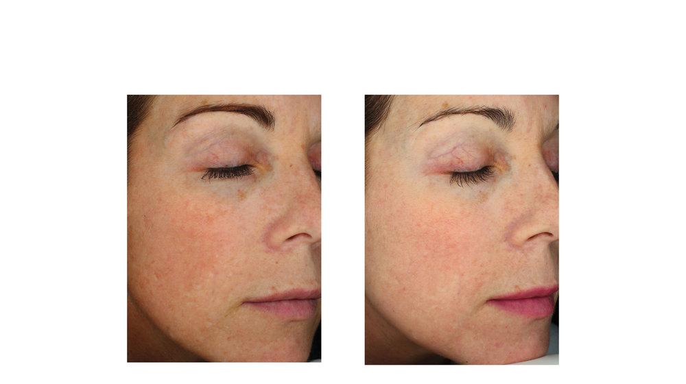halo laser, forever young bbl, skintyte - before and after 011 - face