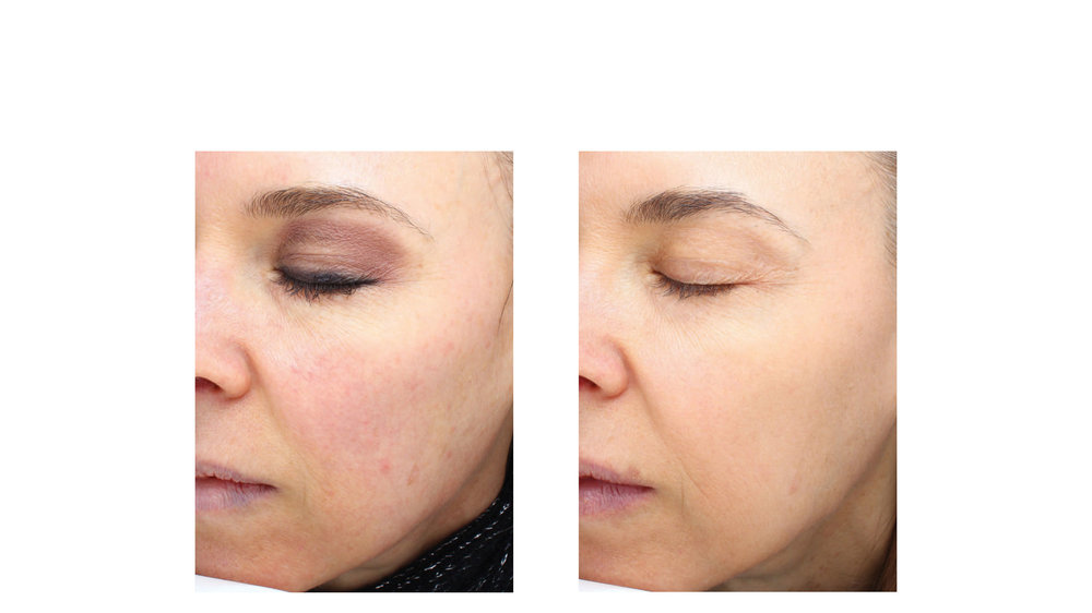 halo laser, forever young bbl, skintyte - before and after 012 - face - side view