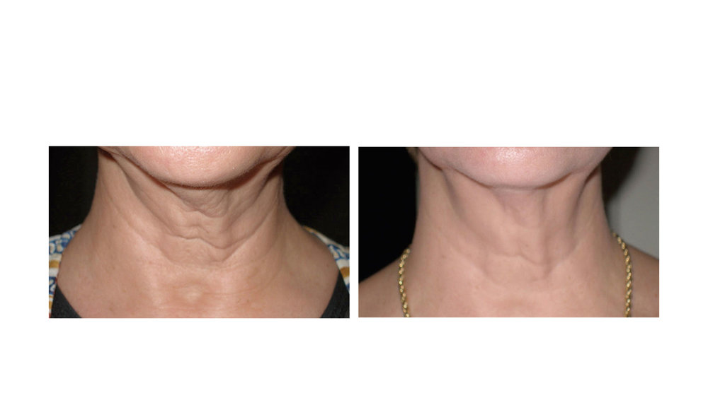 halo laser, forever young bbl, skintyte - before and after 013 - neck