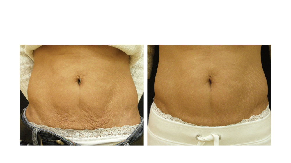 halo laser, forever young bbl, skintyte - before and after 014 - belly