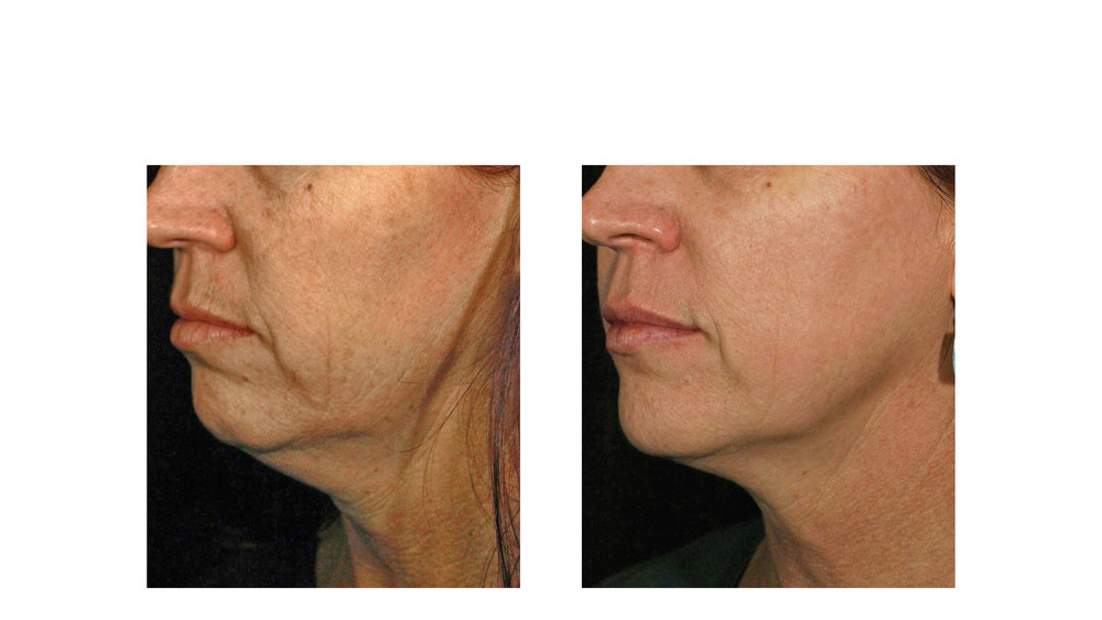 halo laser, forever young bbl, skintyte - before and after 015 - side view