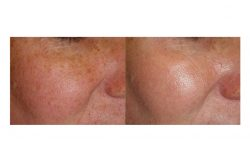 halo laser, forever young bbl, skintyte - before and after 015