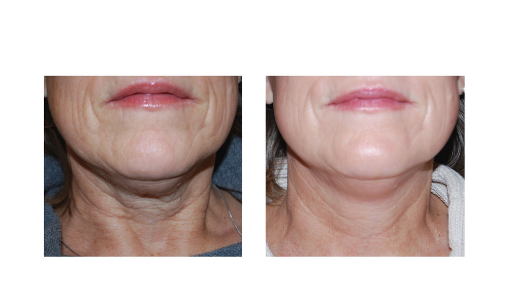 halo laser, forever young bbl, skintyte - before and after 016
