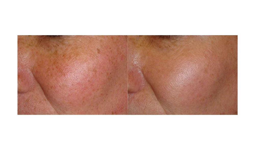 halo laser, forever young bbl, skintyte - before and after 016 - face