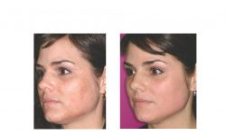 halo laser, forever young bbl, skintyte - before and after 017 - side view