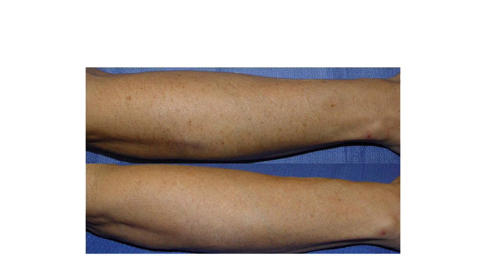 halo laser, forever young bbl, skintyte - before and after 018 - legs
