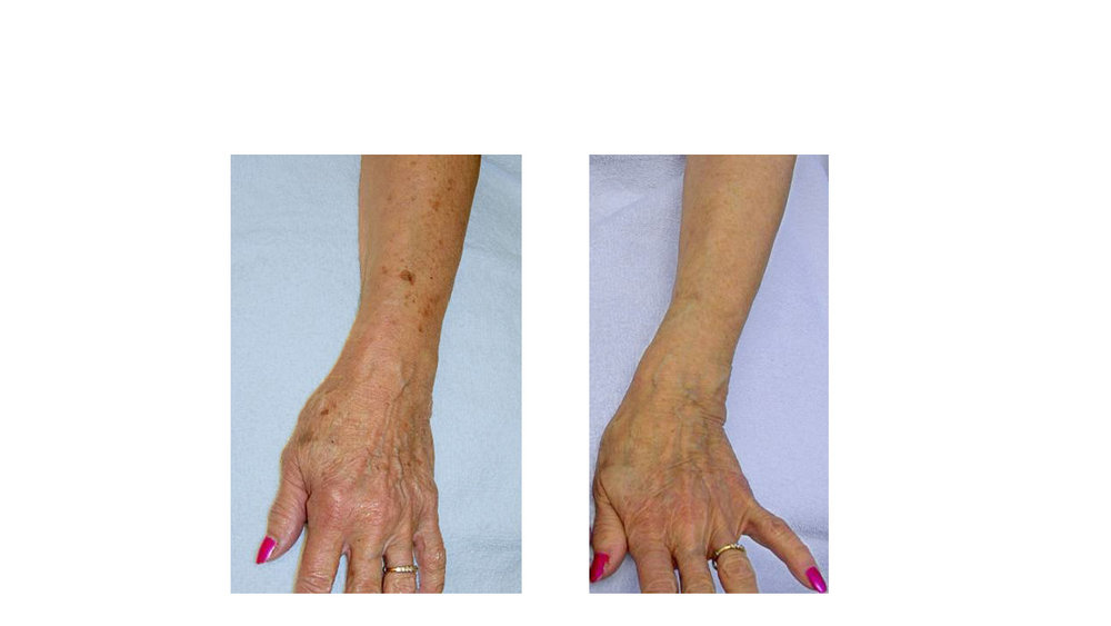 halo laser, forever young bbl, skintyte - before and after 019 - hands