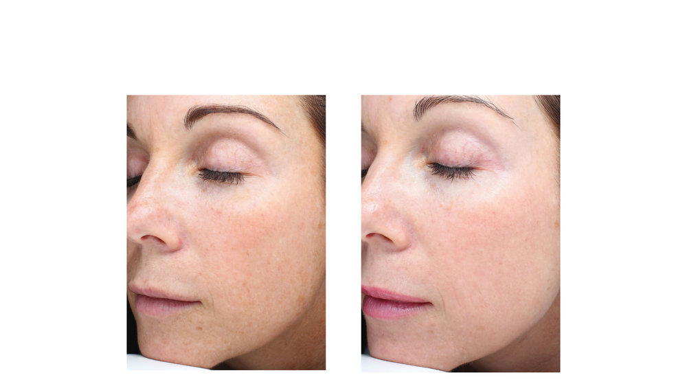 halo laser, forever young bbl, skintyte - before and after 027 - face - 45 degree view