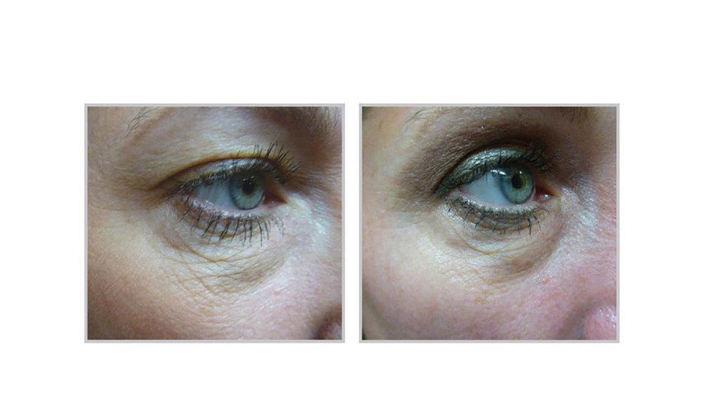 halo laser, forever young bbl, skintyte - before and after 003 - around eyes