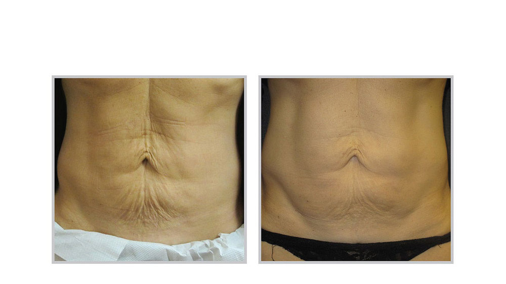 halo laser, forever young bbl, skintyte - before and after 004 - belly area
