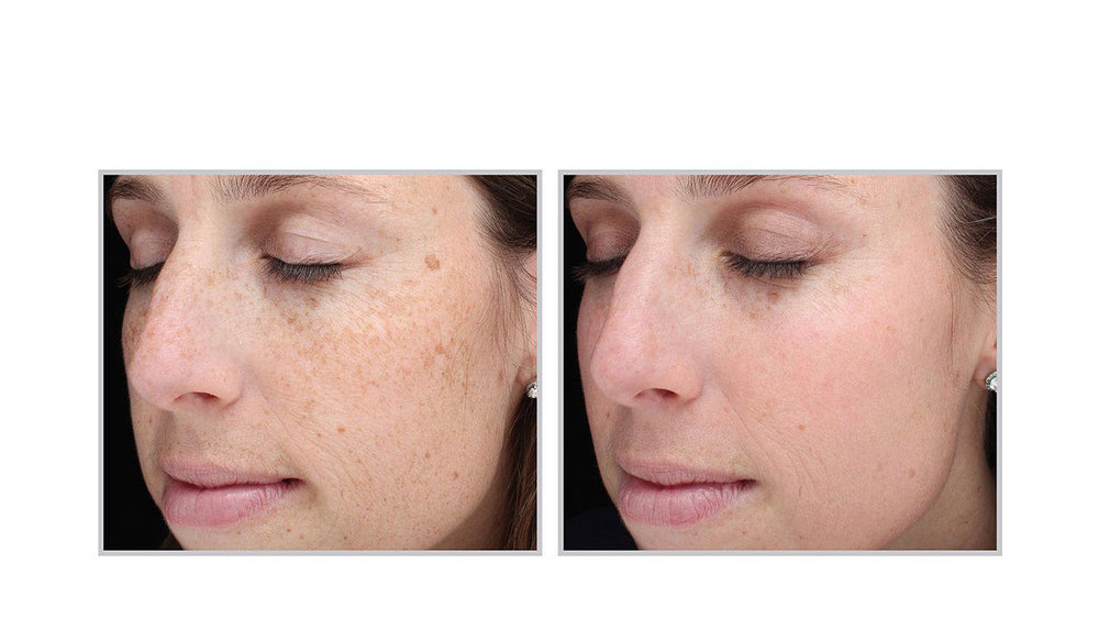 halo laser, forever young bbl, skintyte - before and after 005 - face