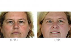 IPL+Photorejuvenation+–+Face_1+(actual+client)