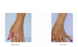 IPL+Photorejuvenation+–+Hand+&+arm+(actual+client)