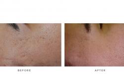 Laser+Genesis+–+Acne+scars
