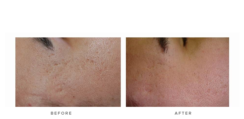 laser genesis treatment for scars - before and after - real patient