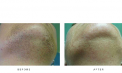 Laser hair removal before and after 01