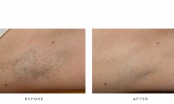 IPL laser hair reduction, before and after 02