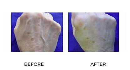 dermal fillers 012 - before & after - hands