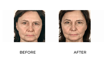 dermal fillers - patient 014 - before and after