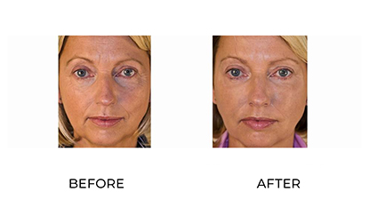 dermal fillers before and after - image 015 - front