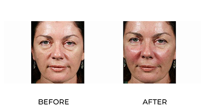 dermal fillers image - 0017 - before and after treatment