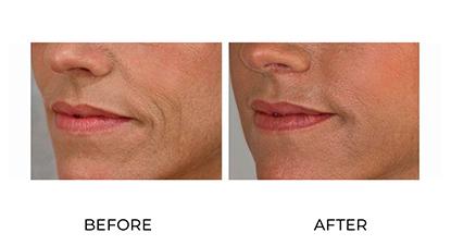 dermal fillers - before & after - 019