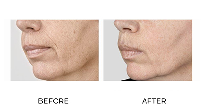 dermal fillers 020 - before and after image