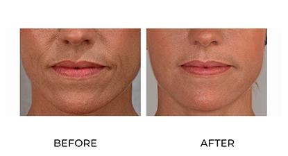 dermal fillers before & after - image 021 - front