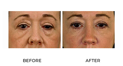 dermal fillers before & afters - image 003 - small