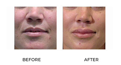 dermal fillers gallery - before and after - image 004 - small