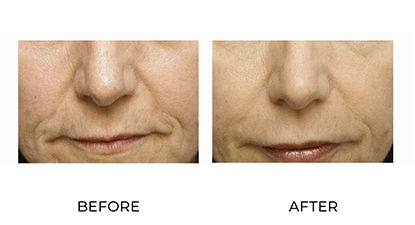 before & afters - dermal fillers - patient 007