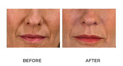 dermal fillers gallery - patient 009 - before & after
