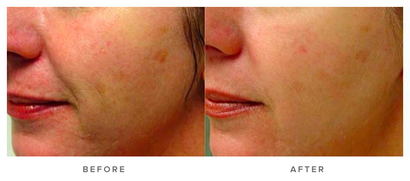 IPL-SQ® INTENSE PULSE LIGHT PHOTOREJUVENATION