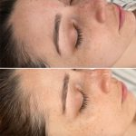 hydrafacial before and after - image gallery - female patient