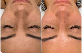skinpen before and after - image 002