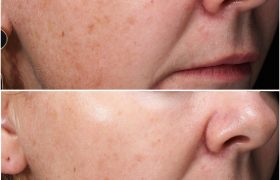 skinpen before and after - patient image - infinity clinic