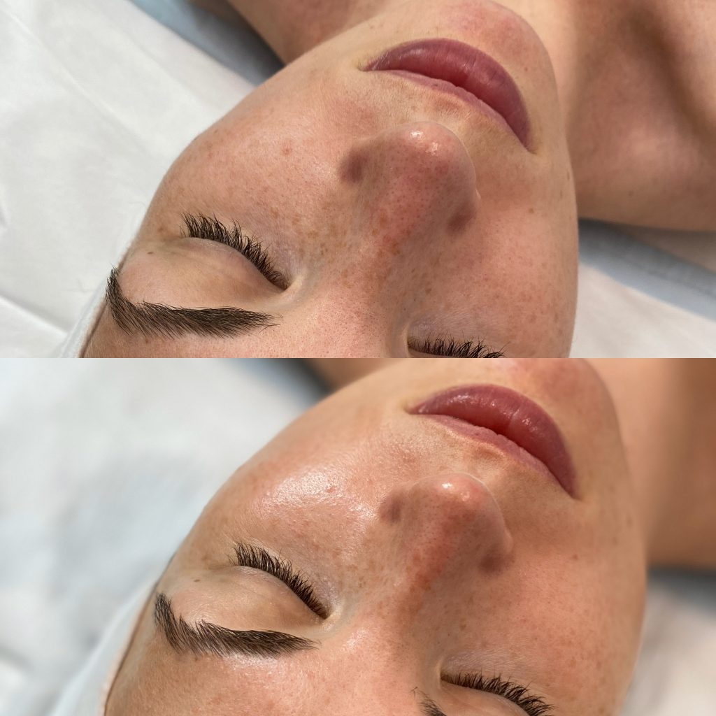 medical grade skin peels - before and after image 002