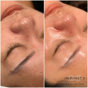 hydrafacial before & after gallery - infinity clinic sydney