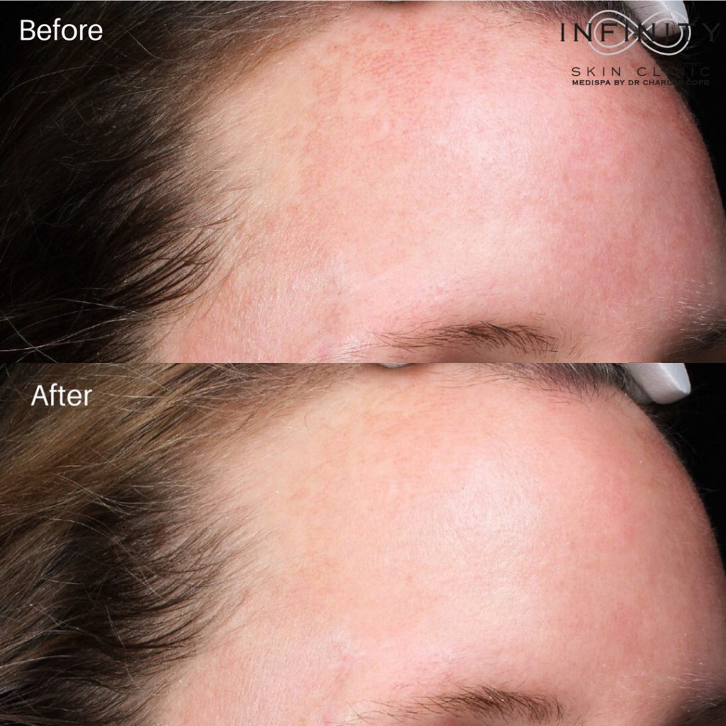 medical grade skin peels gallery - before & afters - patient 003