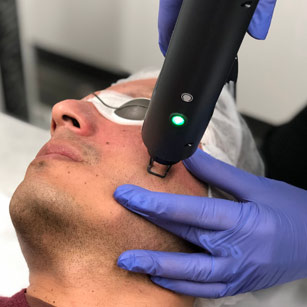 DUALMODE FRACTIONAL LASER RESURFACING