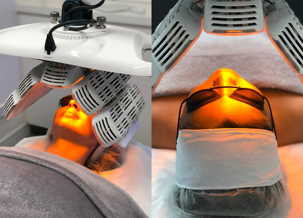 Healite II Treatment - LED phototherapy for skin rejuvenation - patient during session