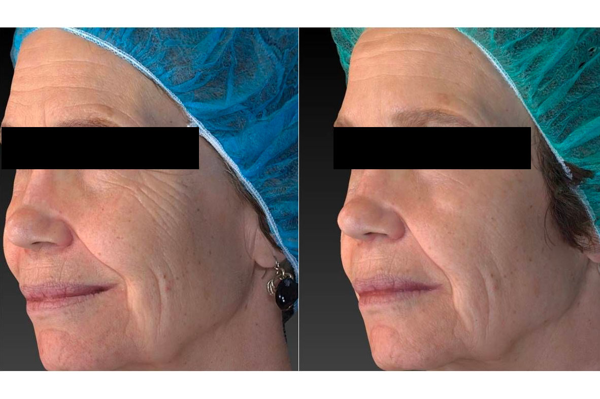Vivace RF Needling - before and after gallery 002